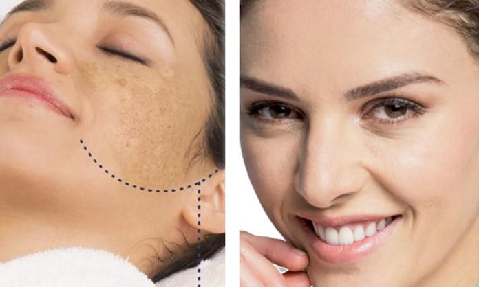 Lifting facial casero para manchas