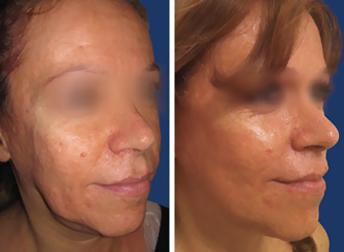 Lifting facial postoperatorio 2018