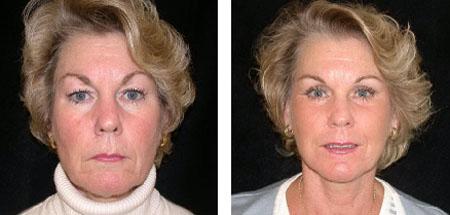 Lifting facial postoperatorio