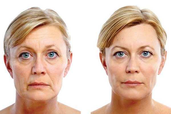 ¿Qué es el lifting facial con láser?