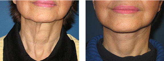 lifting cuello antes y despues