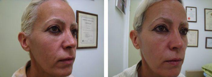 lifting facial con láser