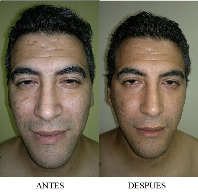 Lifting facial para hombres